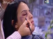 Fas televizyonunda kadına şiddeti makyajla kapatma dersi