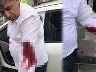 Gazeteci Ökkeş Sabah'a bıçaklı saldırı