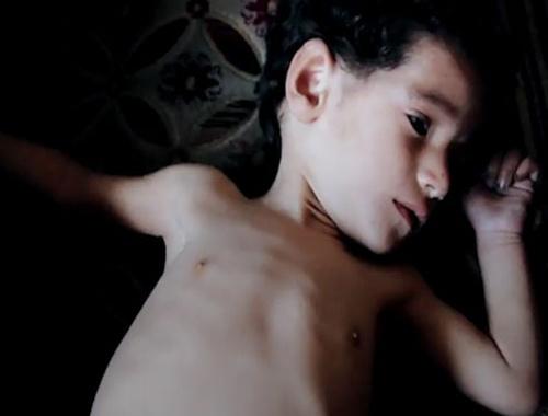 TRT World Ghouta dramını gözler önüne seriyor