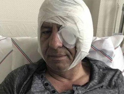 Gazeteci Yavuz Selim Demirağ'a saldıranlar serbest bırakıldı