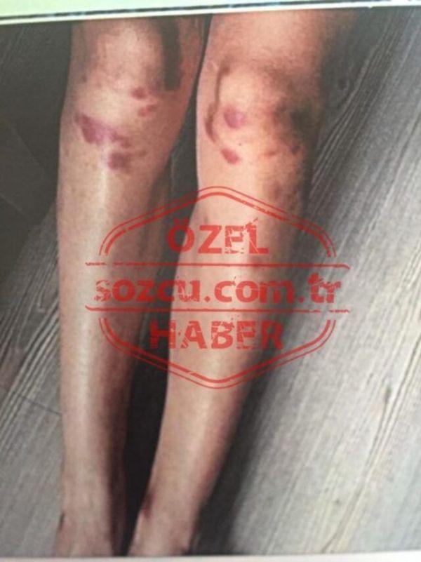 Ozan Güven'in dövdüğü Deniz Bulutsuz'un yeni görüntüleri ortaya çıktı - Sayfa 3