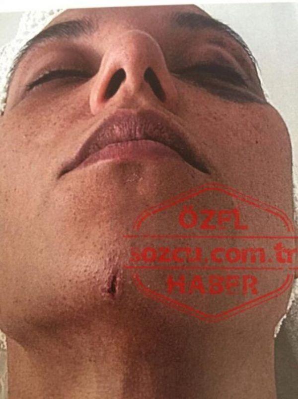 Ozan Güven'in dövdüğü Deniz Bulutsuz'un yeni görüntüleri ortaya çıktı - Sayfa 4